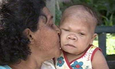 WorldView Video: A 30 Year Old Infant Woman in Brazil